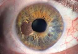 10 000 indians diagnosed with eye cancer each year