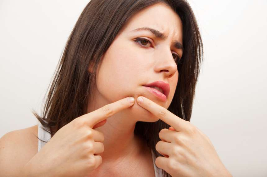 Some patients will squeeze acne in an attempt to try to open up a clogged pore. However, this usually leads to further inflammation, which makes the acne look worse and last longer. Please don't squeeze it and use Benzoyl Peroxide or Salicylic acid face wash with a balanced PH for acne patients. This will also shrink the acne eruption gradually.