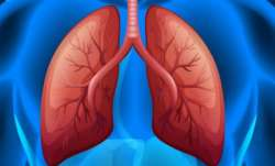 Cells damaged by chronic lung disease can result in severe Covid